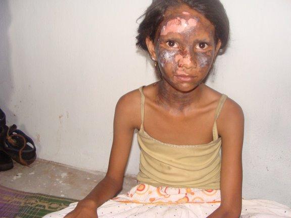 Một bé gái Cơ đốc bị đánh đập và bỏng mặt trong vụ bạo lực xảy ra vào năm 2008.