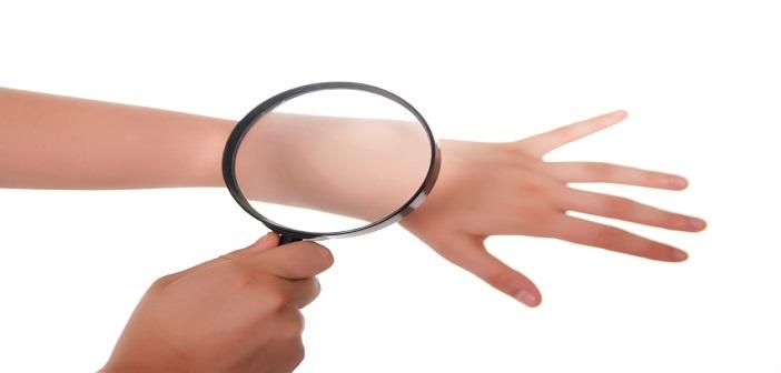 Hand, Lupe und Haut